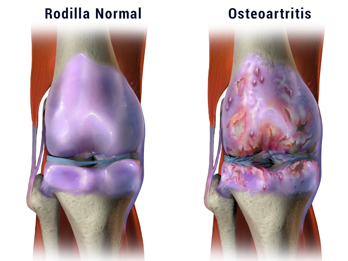 Ejercicio y dolor de artritis de rodilla: la ciencia de por qué funciona